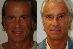 male-facelift_3a