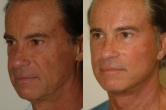 male-facelift_3b