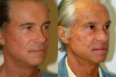 male-facelift_3c