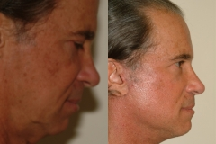 male-facelift_3d