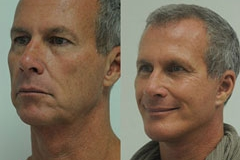 male-facelift_4a