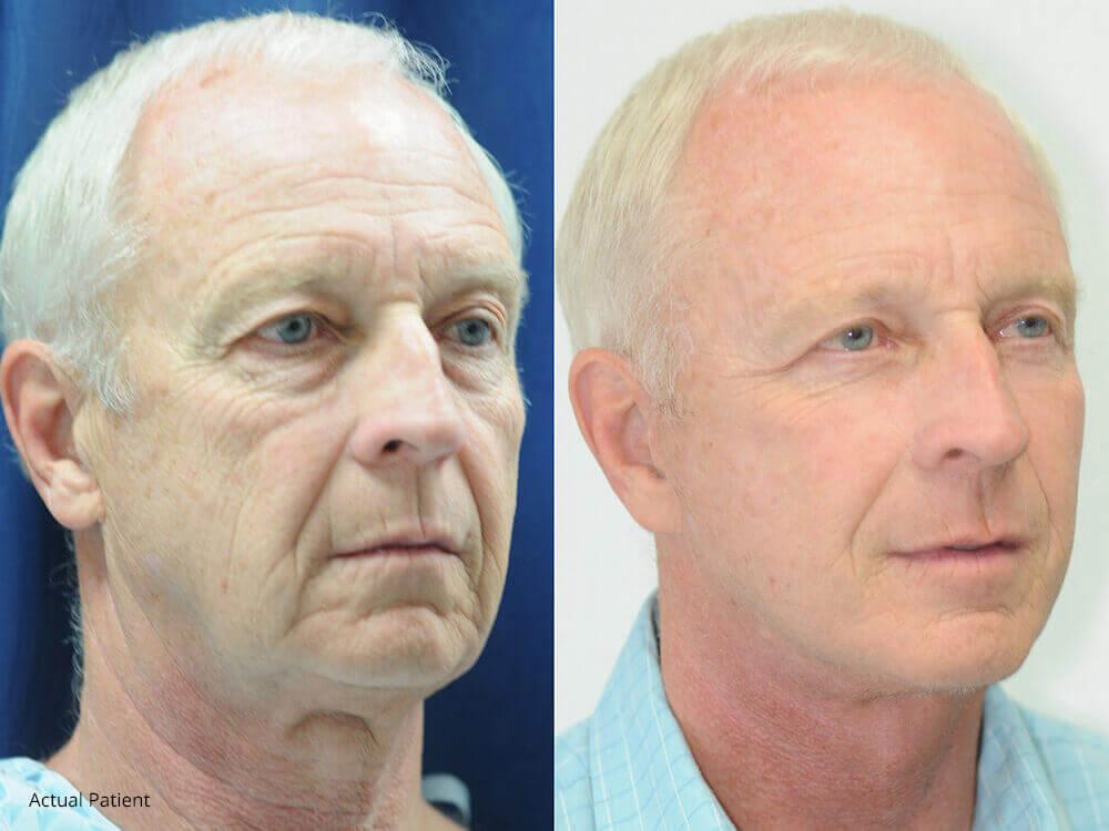 Patient after a vertical facelift