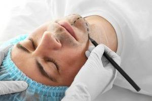 Plastic surgery concept- chin implant