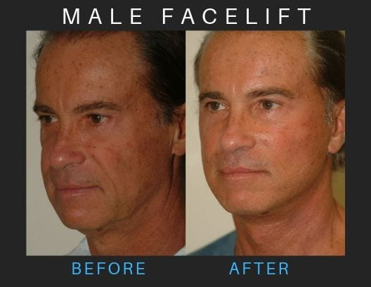 male-facelift_3b-blog-ba-img