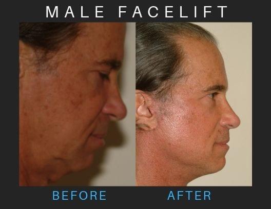 male-facelift_3d-blog-ba-img