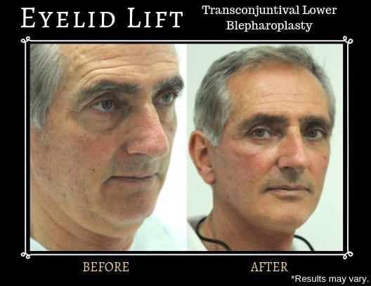 Before and after image showing the results of a transconjunctival lower blepharoplasty surgery on a male patient.