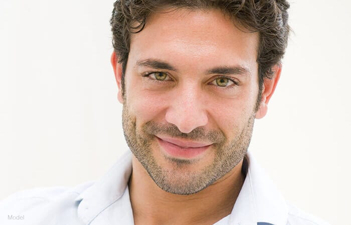 male model wearing white polo shirt facing forward and smiling for endoscopic browlift