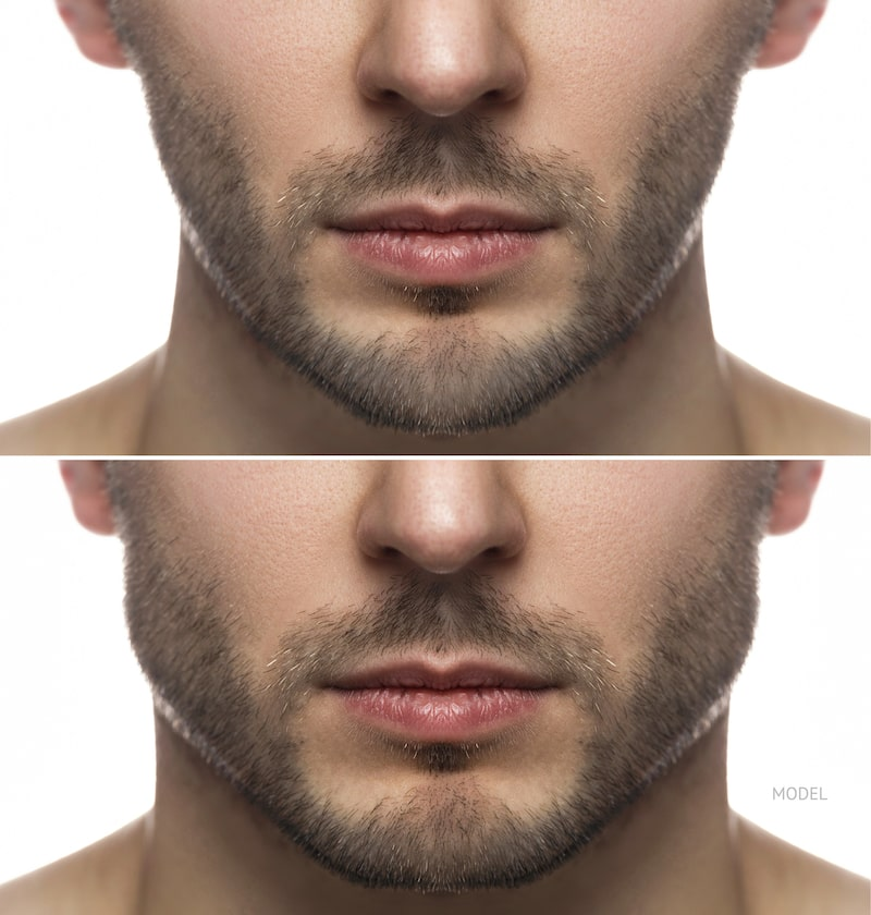 Man before and after his jawline contouring surgery with jaw implant.